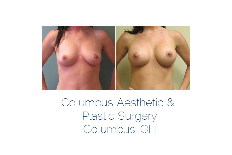 Breast Implant Photos