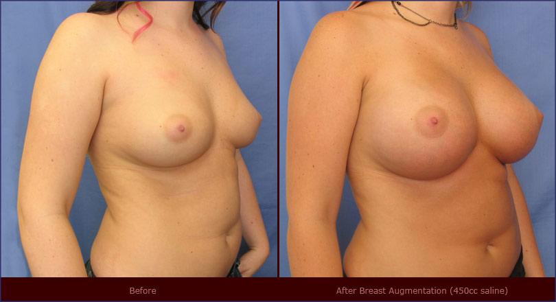before and after pictures of breast implants. Breast Augmentation Before and After Photos c**rt*sy of Dr. York Yates,