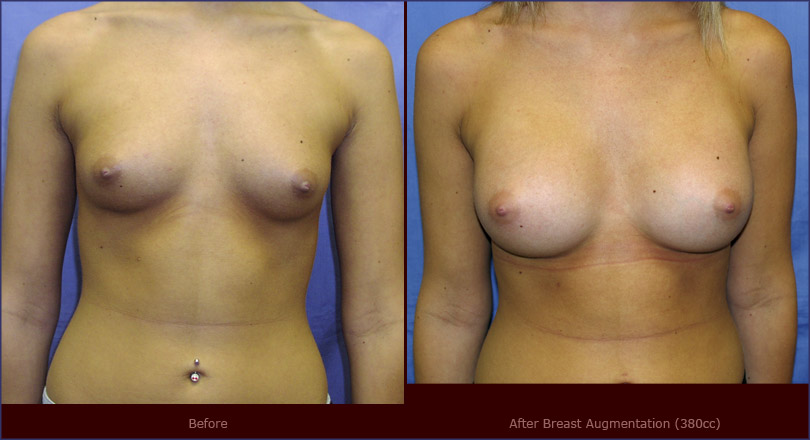 augmentation breast surgeon utah jpg 853x1280
